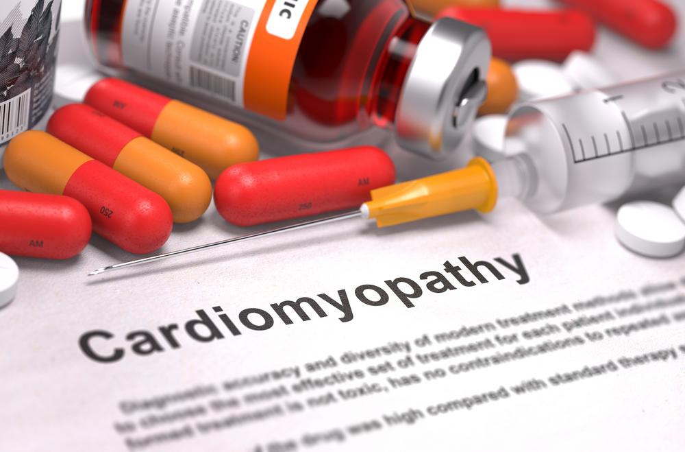 что такое кардиопатия