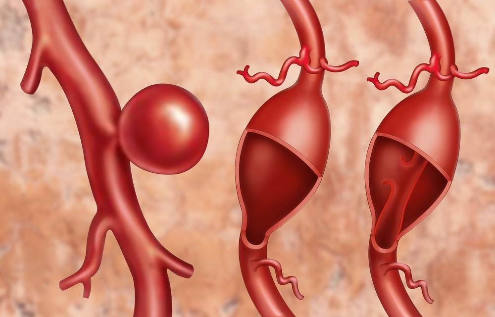 почему опасна аневризма аорты