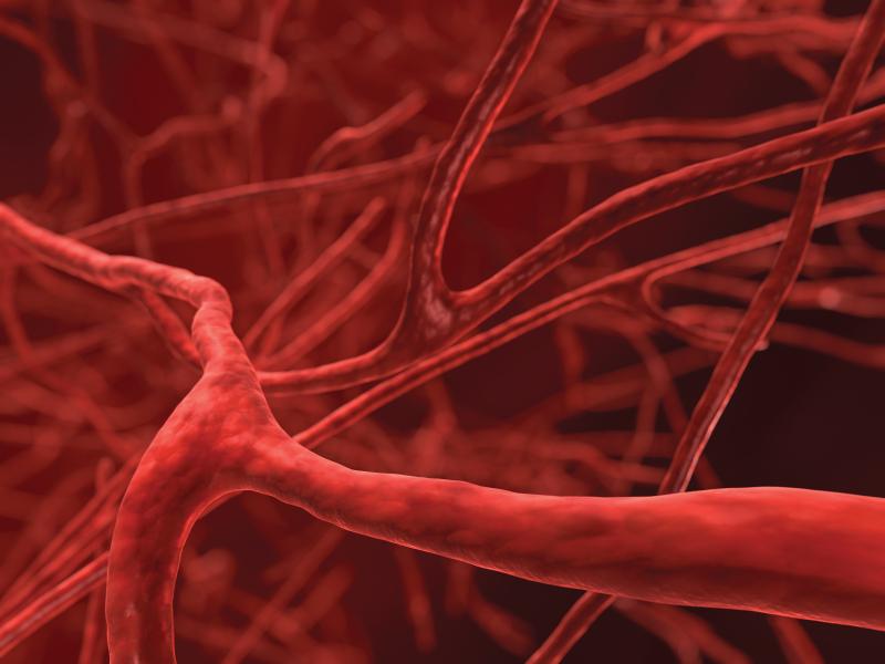 причины развития аневризмы аорты