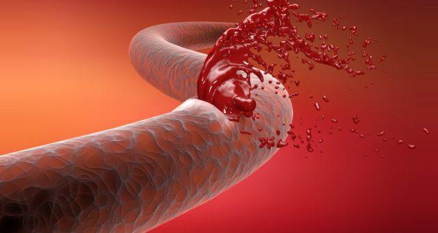 симптомы лечение аневризмы аорты