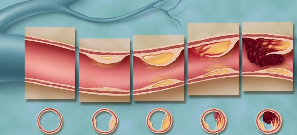 этапы развития атеросклероза головнго мозга