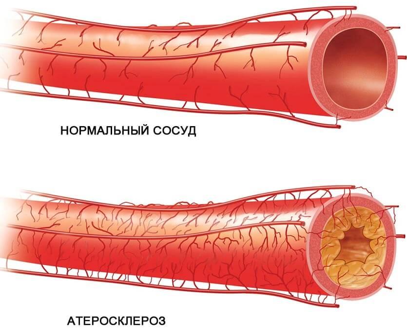 симптомы атеросклероза головного мозга